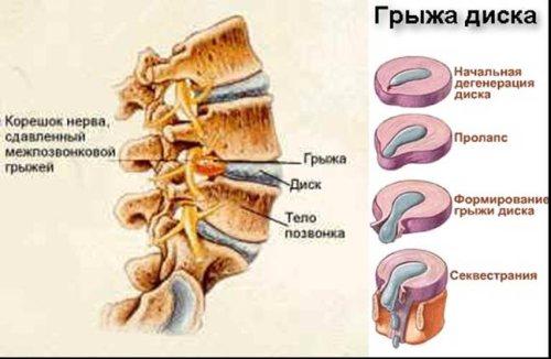 диагностика дисков грыжи и Лечение межпозвоночных в.