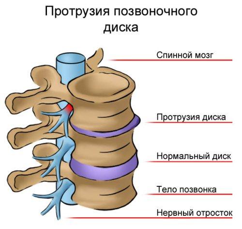 Ноющая боль в боку ближе к спине